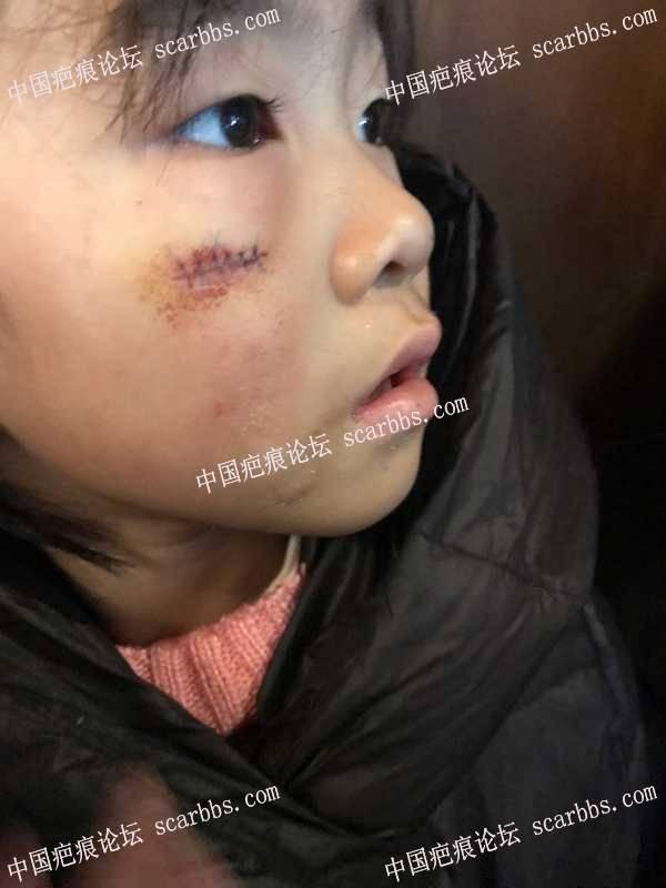 宝贝脸上磕伤,缝了两层六针