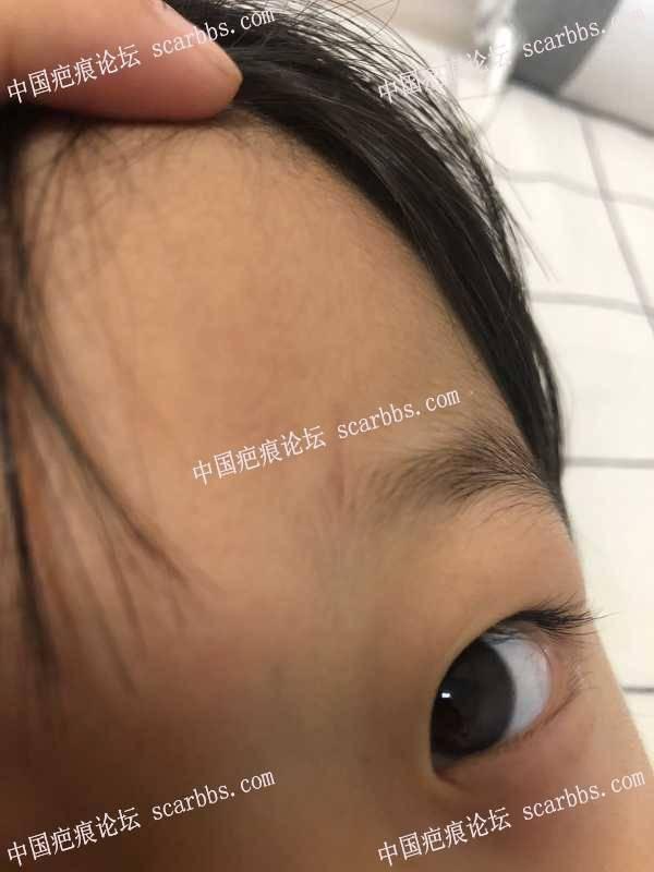 小孩额头受伤10天了,伤口深没缝针,需要贴减张贴吗?