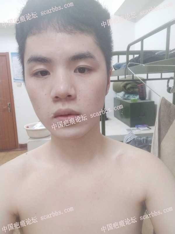 嘴角疤痕求治疗方法