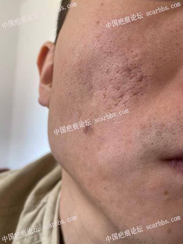 面部第二次痘坑切缝,还是已失败告终
