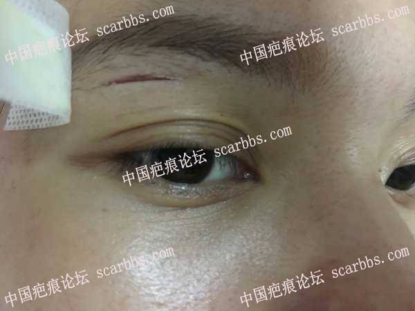 眼皮上磕伤了一道口子,怎么护理能不留疤?