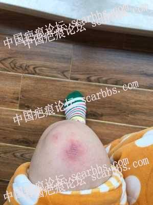 膝盖磕伤疤要多久恢复呢