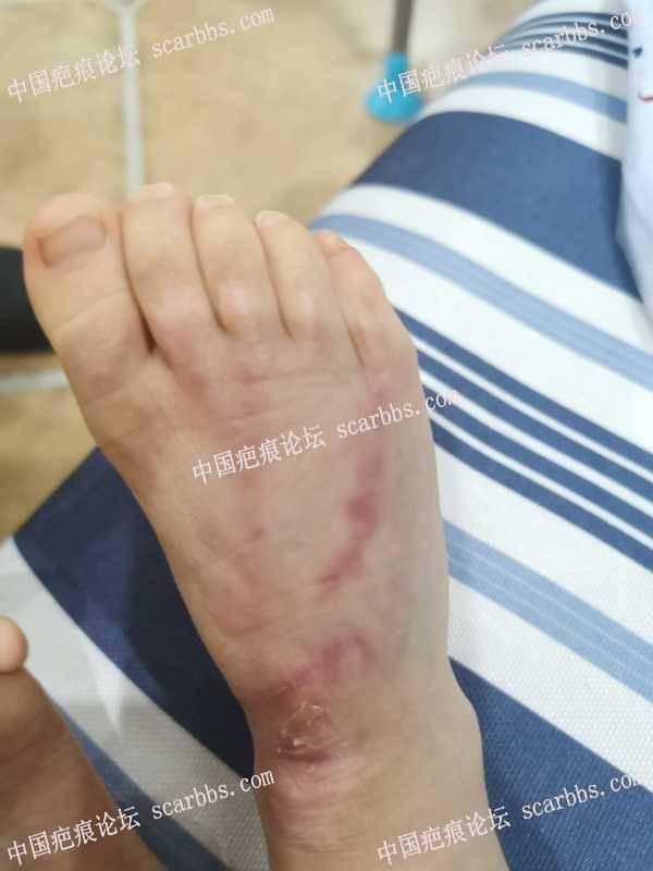 宝宝一岁八个月,脚烫伤六个月,深二度,会不会以后发育牵拉脚趾