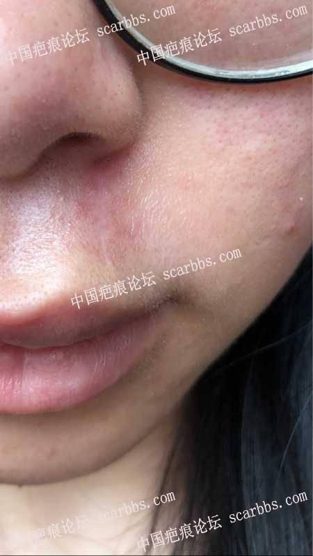疤痕切割3个月后旁边皮肤凹陷?