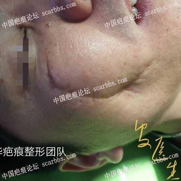 面部陈旧性凹陷疤痕,还是以手术治疗为主!