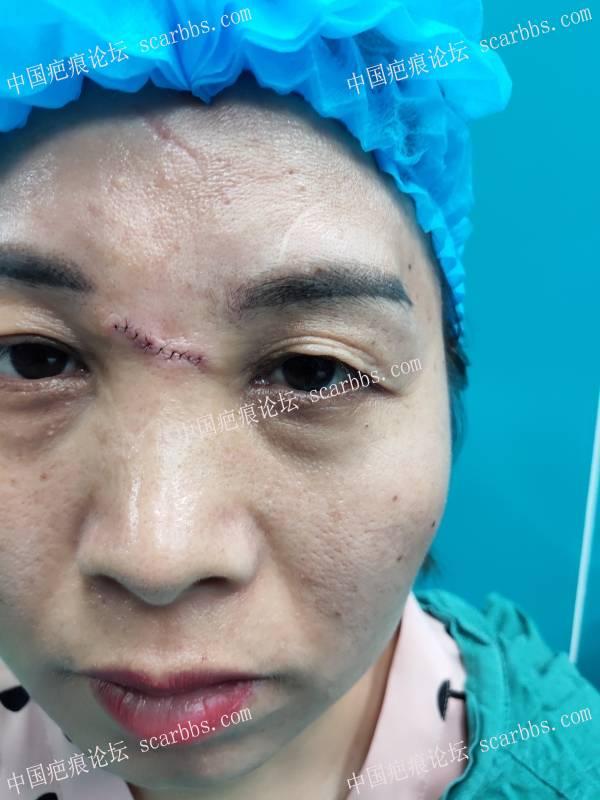 面凹和眼睛肿物切除
