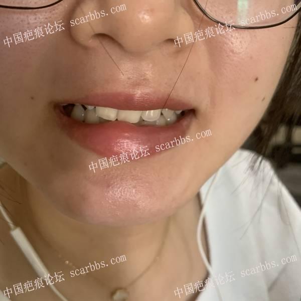 嘴唇受伤缝合后凸起来了,还能消回去吗