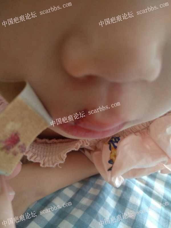 宝宝嘴巴磕伤缝五针