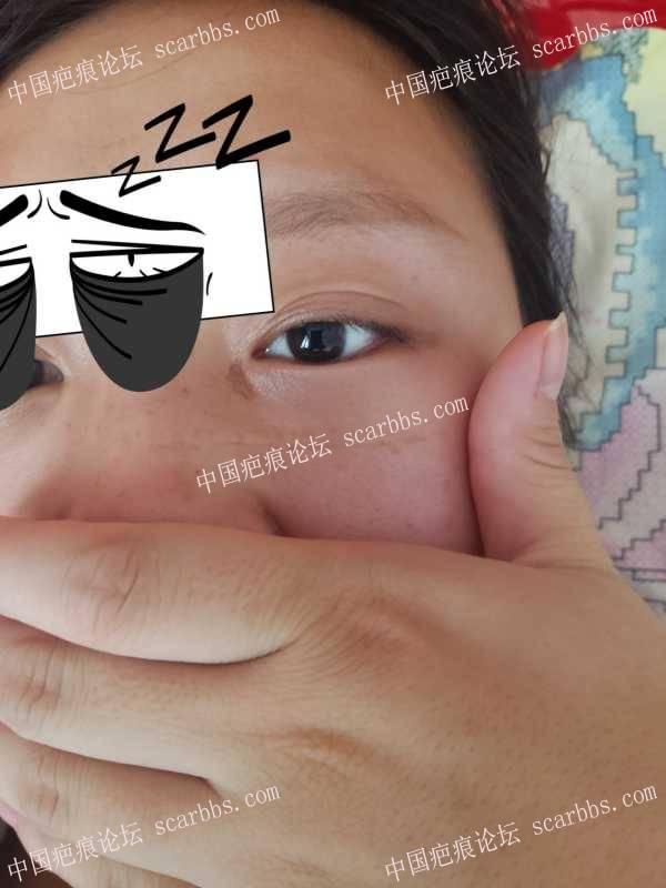 面部的凹凸疤痕该怎么治疗?