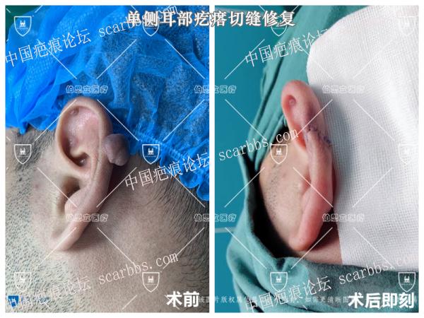 单侧耳朵疤痕疙瘩切缝