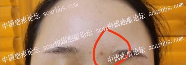 嘴唇上方啤酒划伤十多年了,凹陷疤痕怎么改善?