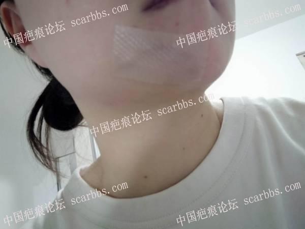 2020年8月11日外院切缝6次的疤痕在杨教授诊所切除了