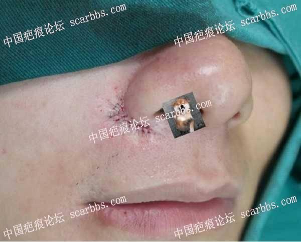 2020年8月27日杨教授鼻翼切缝反馈