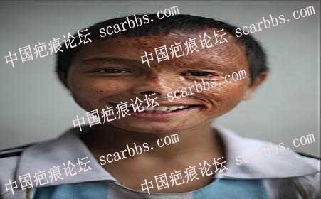 杨教授你好,面部烫伤疤痕怎么修复?