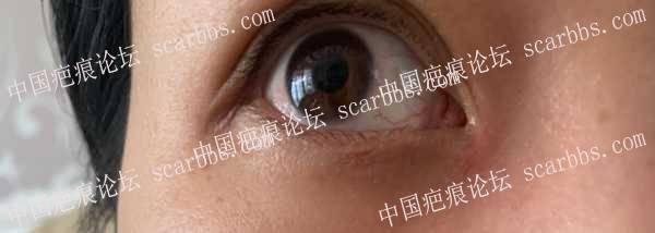 开眼角后疤痕治疗,大家帮我看看有没有好转