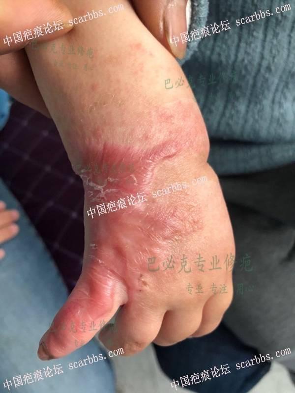 宝贝增生疤痕一个修复的过程
