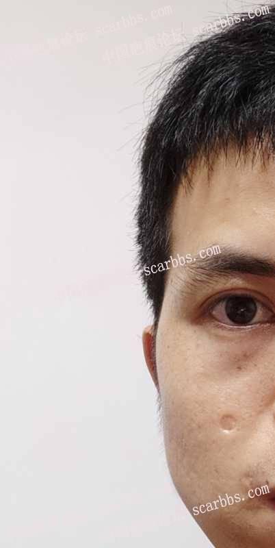 记录自己脸上凹陷疤痕祛疤之路2020-08-30