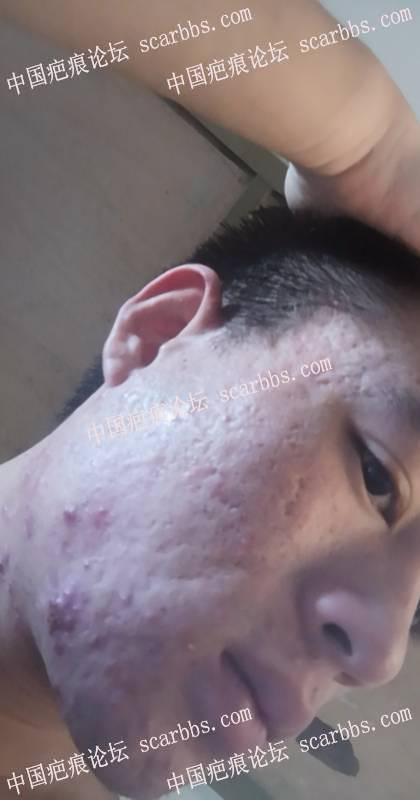 这样的脸部大面积凹凸疤痕还有的救