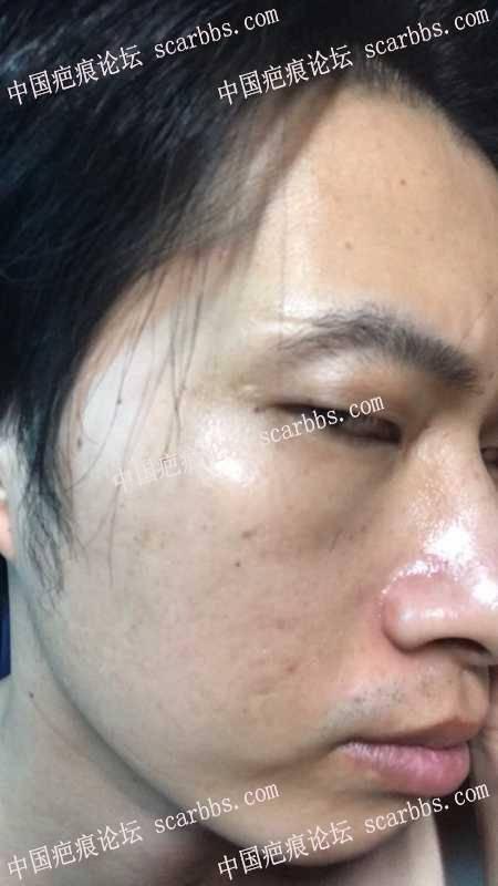 面部20多年的老疤痕,能修复到什么程度?求助!