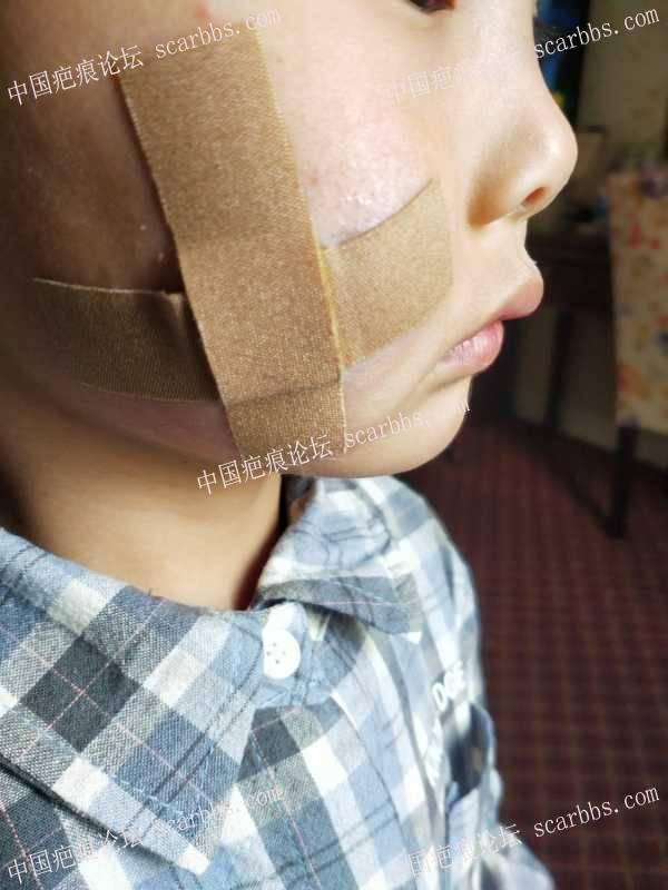 孩子脸部受伤的修复历程