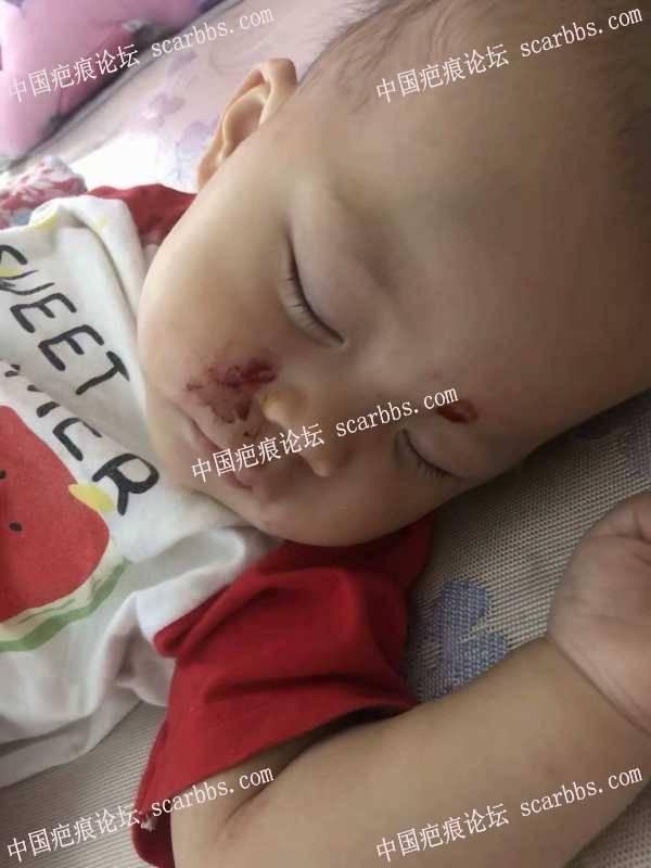 宝宝被碗扎伤,留疤求助