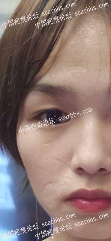 十六年的脸部凹陷疤痕,怎么修复比较好?