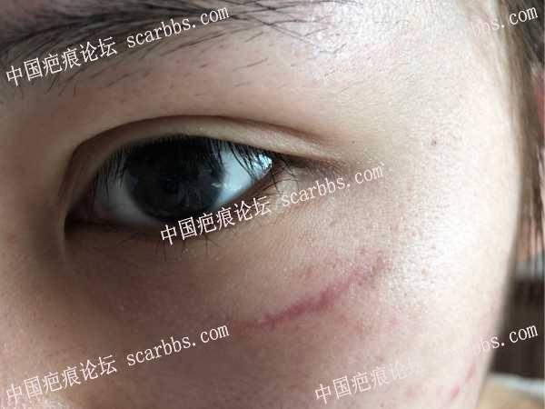 面部车祸受伤一年了,还有其他治疗方法吗?