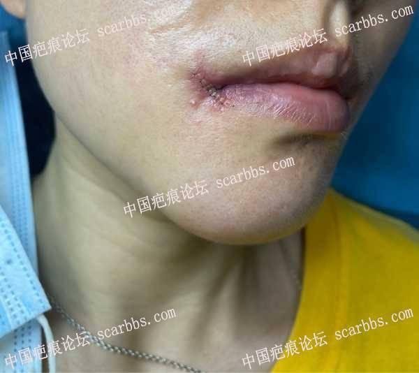 嘴角疤痕8.31杨教授那里做了切缝