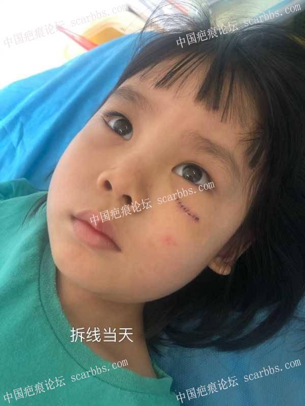 四岁女宝磕伤脸部,2厘米伤口,怎么护理可以尽可能不留疤