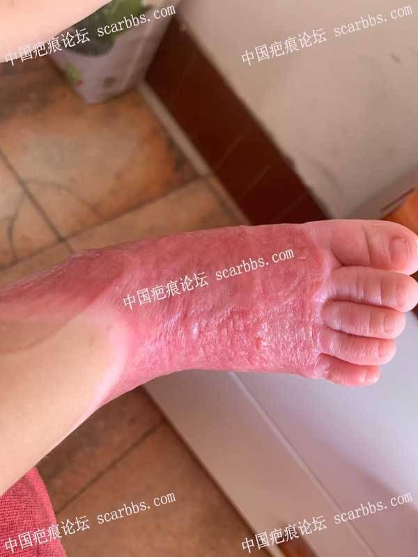 孩子脚开水烫伤植皮第45天