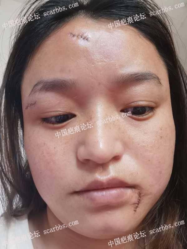 更新面部增生疤痕,手术后第二天情况
