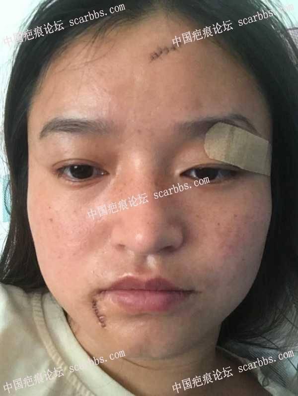今天面部疤痕术后第三天