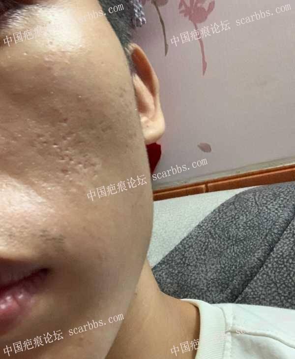8.20天津时光面部切缝磨削