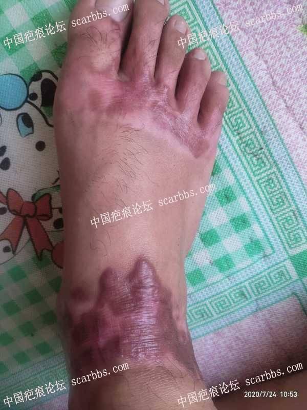 脚背烧伤五个月,现在疤痕增生求助