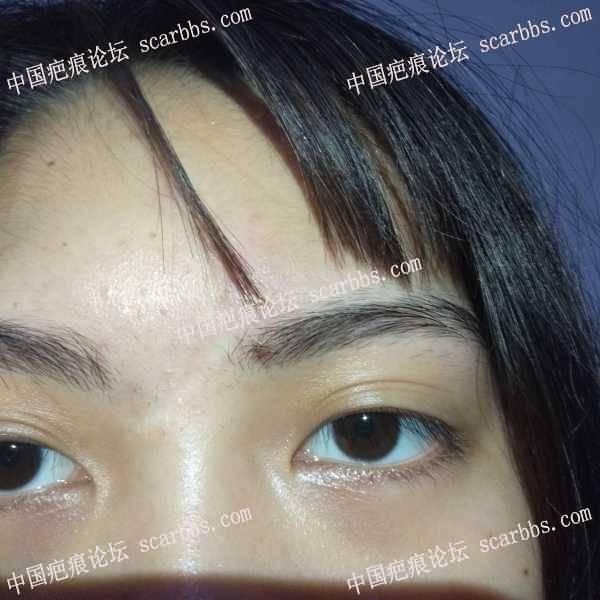 鼻梁上方凹陷疤痕,有什么好的治疗方法吗?
