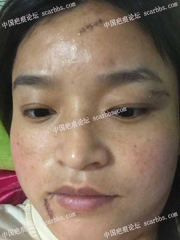 面部疤痕手术第五天