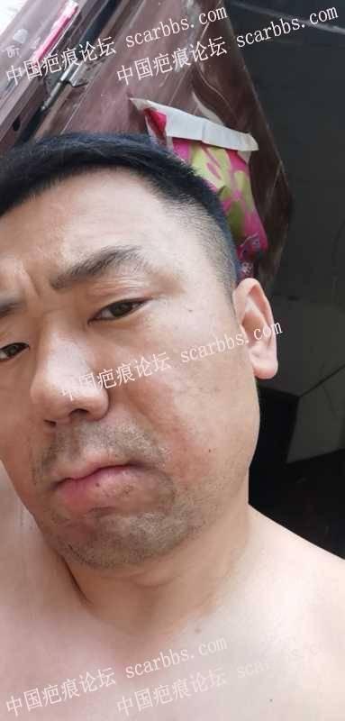 面部30年烧伤疤痕,怎么治疗?