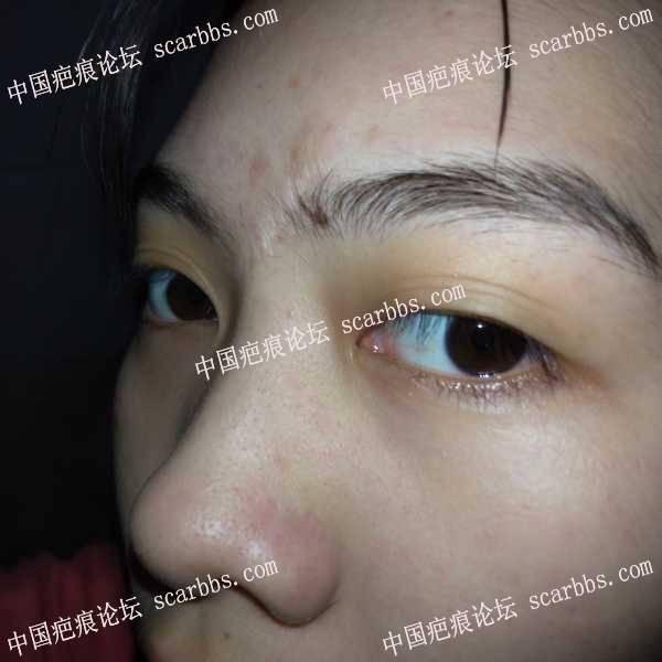 面部凹陷疤痕,祛疤有什么建议?