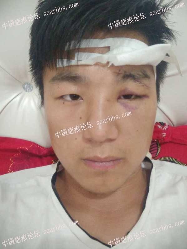 眉部外伤还没有拆线,求助抗疤方法