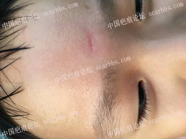 6岁宝宝额头磕伤一公分 美容缝合三针,已有4.5月目前表情凹陷该怎么改善?