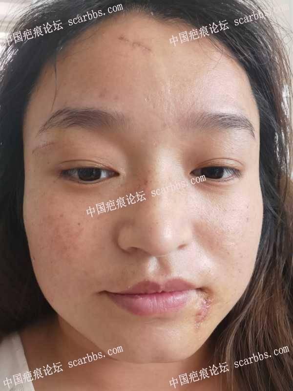 面部疤痕手术,今天第7天拆完线