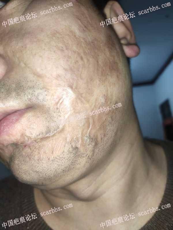 30年面部烧伤疤痕能修复吗