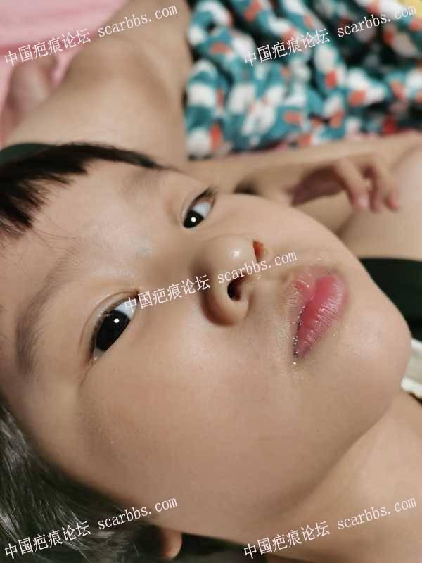 宝宝脸擦伤了9个月了印子还是很明显