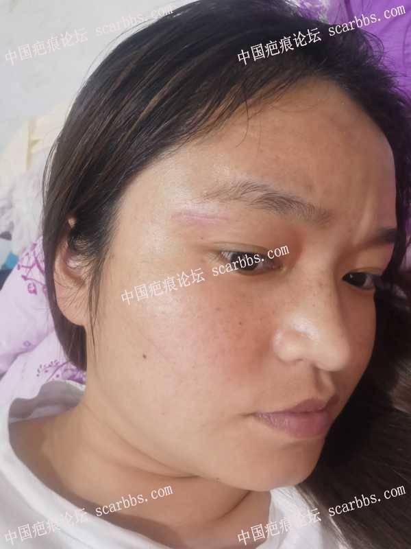 面部疤痕手术拆线的第二天