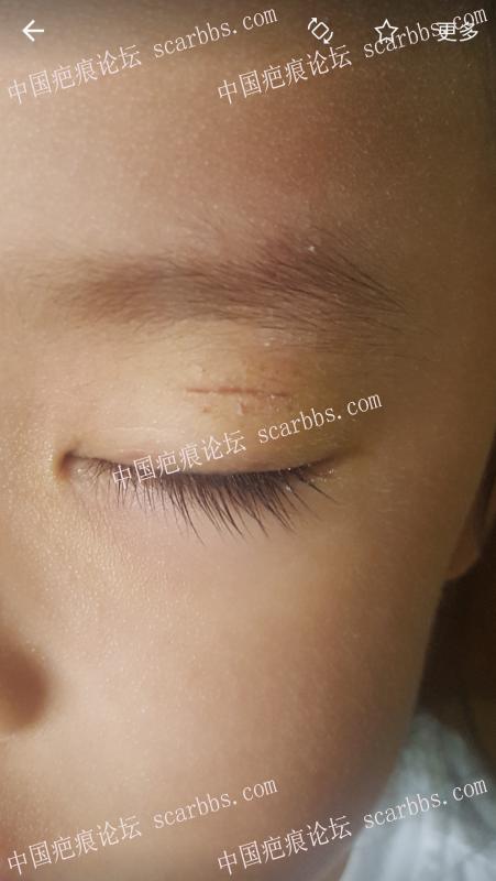 眼皮磕伤,求无痕或接近无痕的方法谢谢~