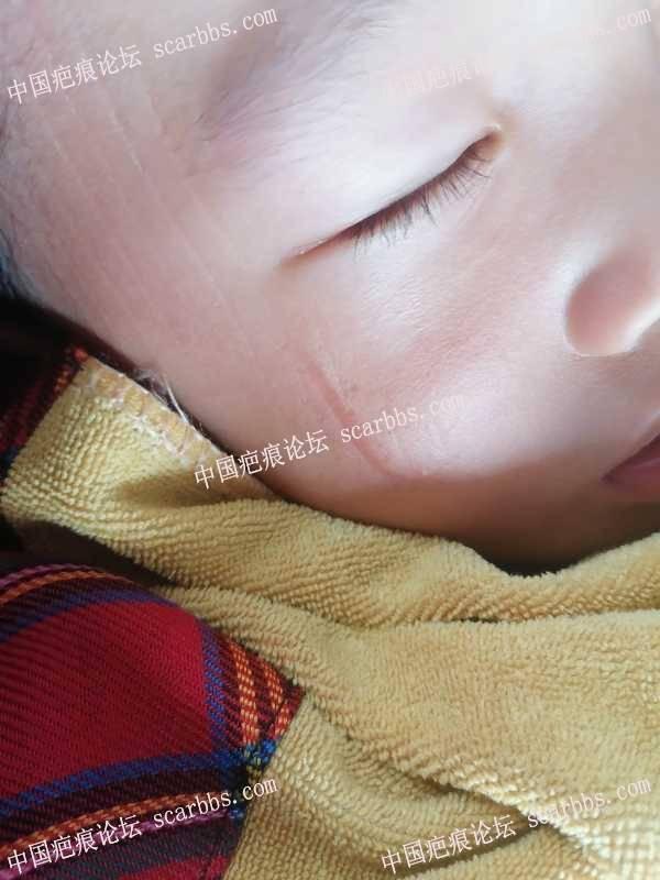 宝宝脸上缝针有一年了,有用什么疤痕膏管用