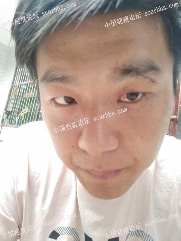 眉毛上的疤痕刚刚拆线能好吗