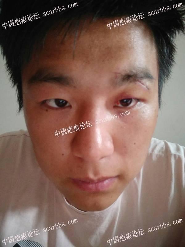 眉部刚刚拆完线,这个疤能不能好?