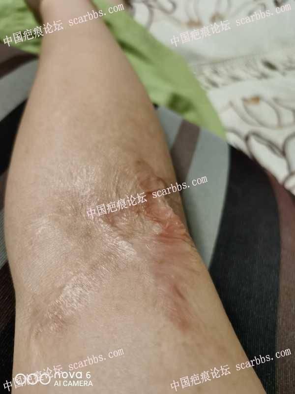 手臂被油烫伤,怎么治疗比较好?