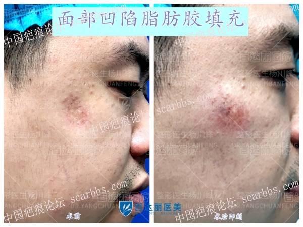 面部凹陷疤痕脂肪胶填充